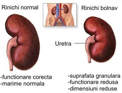 Programul care contribuie la restabilirea funcţiei rinichilor